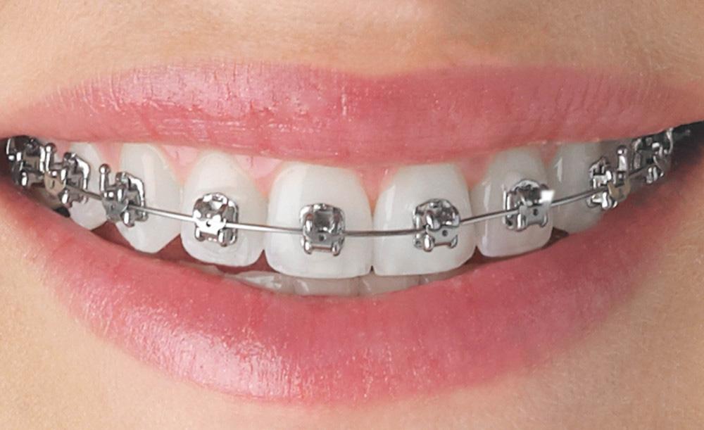 dientes con brackets autoligantes