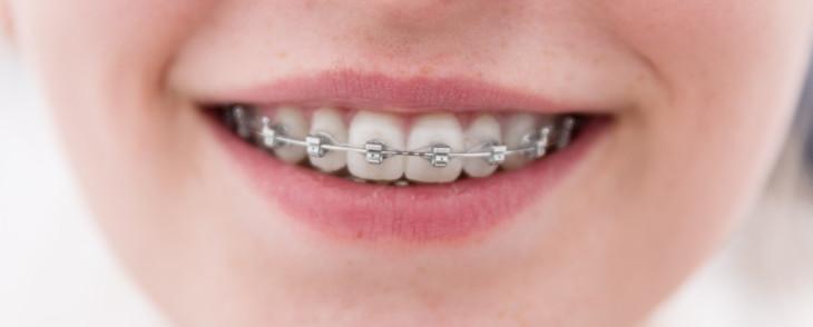 dientes de niña con brackets metálicos
